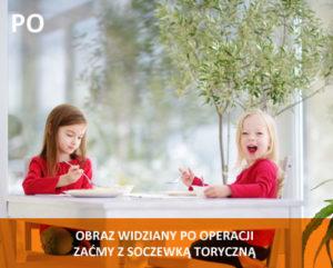 alfa_vision_wady_soczewki_astygmatyzm_a
